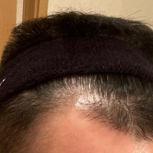 新しい育毛法を取り入れて3ヶ月と3週間