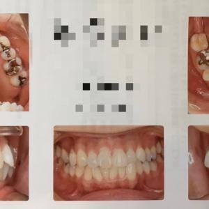 ☆歯列矯正☆検査結果と治療計画