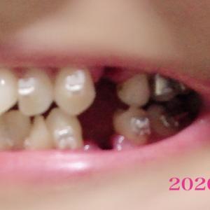 ☆歯列矯正☆さらば永久歯。ついに【抜歯】