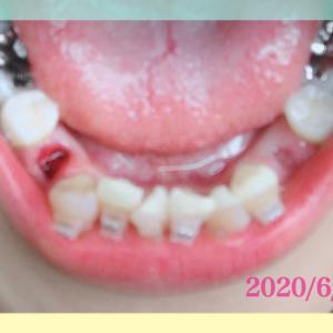 ☆歯列矯正☆さらば永久歯。part2【抜歯】