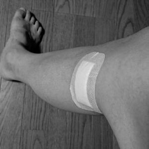 膝の検査結果。