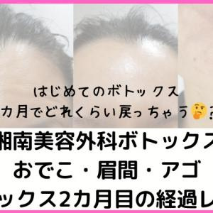 おでこ・眉間・アゴのボトックス2カ月目の経過を口コミレポ!湘南美容外科ボトックスのビフォアフ写真を公開!
