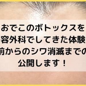 おでこのボトックスを品川美容外科でしてきた体験レポ!施術前からのシワ消滅までの写真公開します!