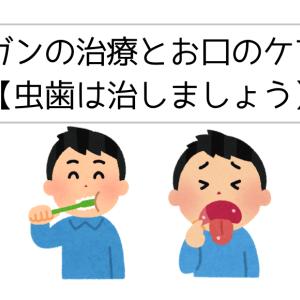 ガンの治療とお口のケア【虫歯は治しましょう】