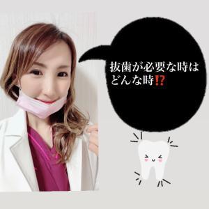 ♡歯科♡  抜歯が必要です‼️‼️どんな時⁉️
