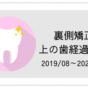 【裏側矯正】上の歯経過写真2019/08~2020/04