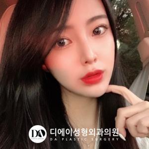 【韓国美容整形/DA美容外科】輪郭3点を受けて小顔美女に美貌アプデ♥#DAセルフィー