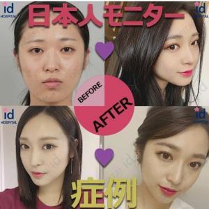 【韓国美容整形/ID美容外科】日本人モニターモデル♥ありささんのReal Story