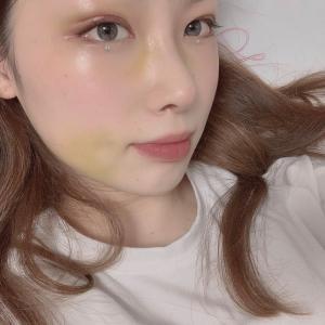 【ラミチェ美容外科】日本人ビューティモデル♥ハズキさんの整形Real Story❺