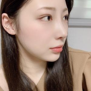 【ラミチェ美容外科】日本人ビューティモデル♥ハズキさんの整形Real Story❼