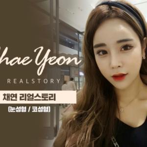 【韓国美容整形/ラミチェ美容外科】韓国女優似の美人さんに変身!?目と鼻整形のReal Story