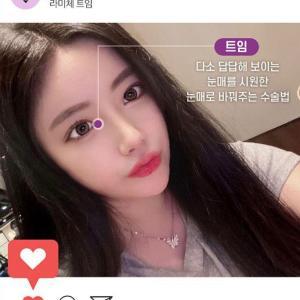 【韓国美容整形/ラミチェ】目・鼻・脂肪吸引のNEW♥Before&After
