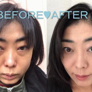 【ラミチェ美容外科】日本人ビューティーモデルみゆき様のビフォーアフター♥