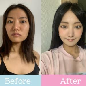 【ラミチェ美容外科】12ヶ月経過♥日本人ビューティモデルゆりかさんの整形Real Story⑭