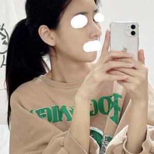 【韓国美容整形/ラミチェ美容外科】NEW!!! 鼻整形リアル後記♥