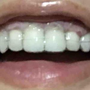 歯茎再生手術から5日目夜