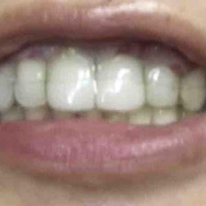 歯茎再生手術から6日目夜