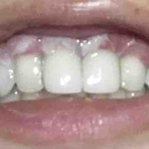 歯茎再生手術から7日目夜