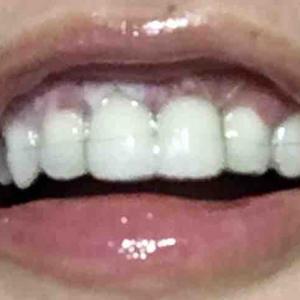 歯茎再生手術から8日目夜