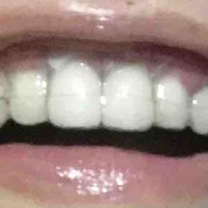 歯茎再生手術から9日目夜