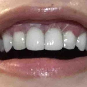 歯茎再生手術から11日目夜