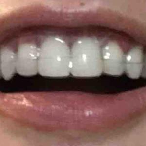 歯茎再生手術から12日目夜