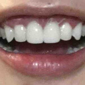 歯茎再生手術から14日目。抜糸してきました