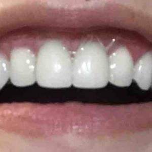 歯茎再生手術から16日目夕方
