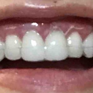 歯茎再生手術から17日目夜