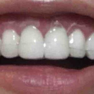 歯茎再生手術から21日目夜