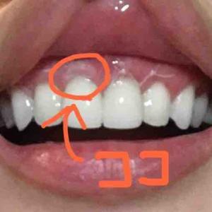 歯茎再生手術から23日目。再び腫れる。出血。