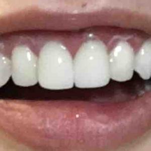歯茎再生手術から27日目夜