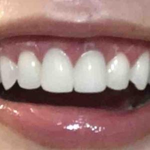 歯茎再生手術から34日目夜。