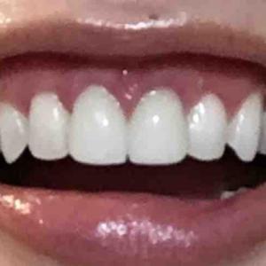 歯茎再生手術から39日目夜
