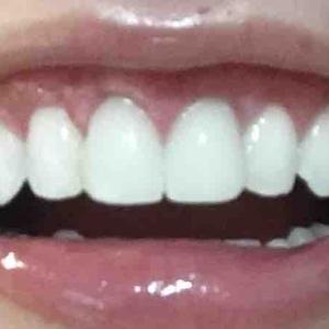 歯茎再生手術から1.5ヶ月目
