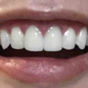 歯茎再生手術から2ヶ月!!!