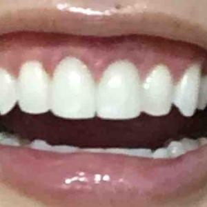 歯茎再生手術から2ヶ月後検診。