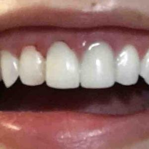 今日も歯医者さん行ったお!