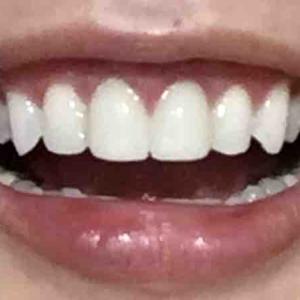 歯茎再生手術から2ヶ月と2週間くらい
