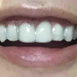 歯茎再生手術。修正手術翌日。