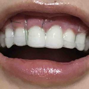 歯茎再生手術。修正手術から3日目