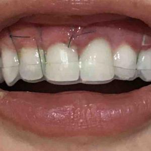 歯茎再生手術。修正手術から2日目。