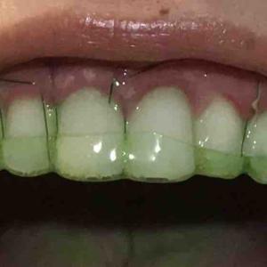 歯茎再生手術。修正手術から8日目