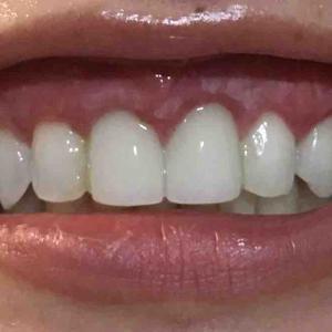 歯茎再生手術。修正手術から2週間目