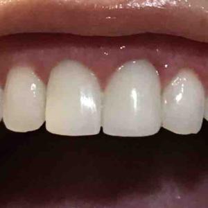 歯茎再生手術。修正手術から16日目。
