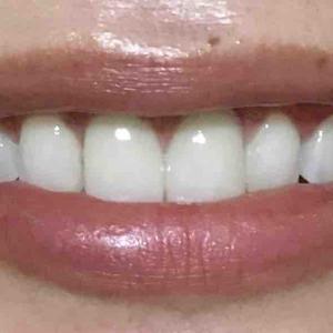 歯茎再生手術。修正手術から約3週間
