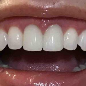 歯茎再生手術。修正手術から3ヵ月弱。