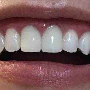 歯茎再生手術。修正手術から3ヶ月と2週間