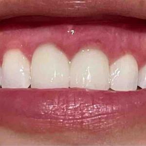 歯茎再生手術!再・修正手術から約2W後