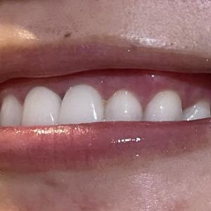 歯茎トリミングから5日目!